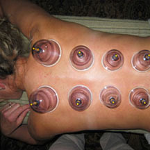 Cupping To Use A Suction Device On Body Parts Commonly Glass Cups Which Are Done With Suction Or Fire